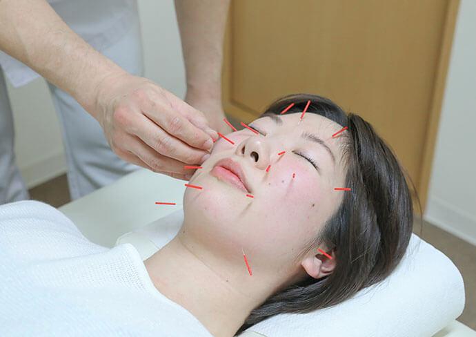 タップ接骨院の美容鍼の様子