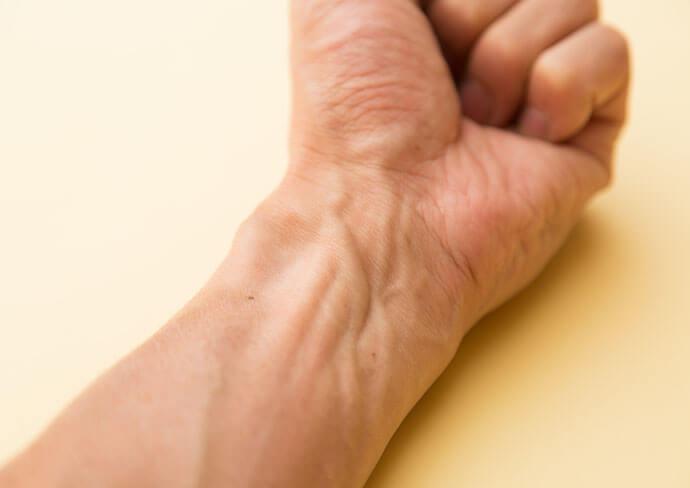 手首の写真